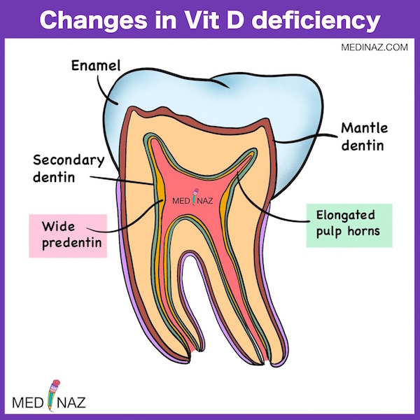 Tooth Changes in Vit D deficiency