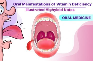 Oral Manifestations of Vitamin Deficiency