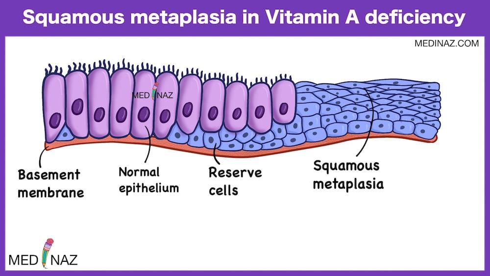 Squamous metaplasia in Vitamin A deficiency
