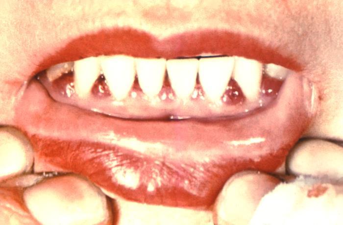 scorbutic gingivitis