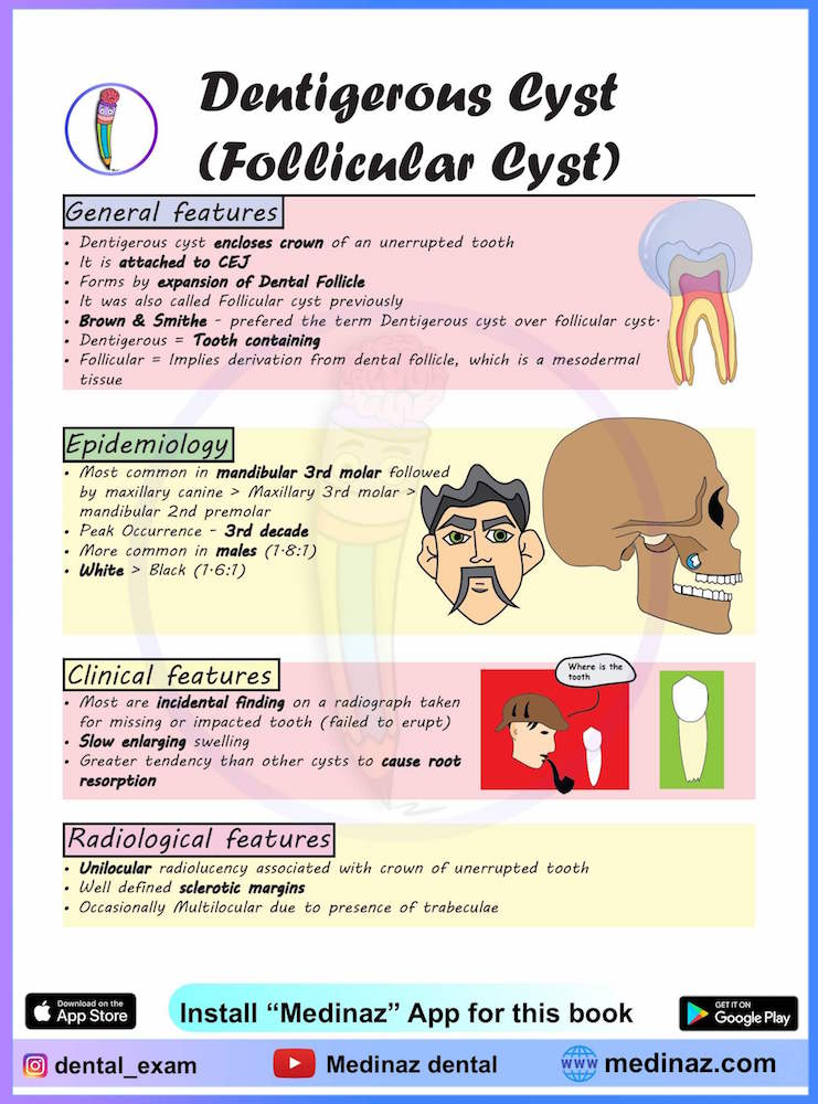Cyst clinical features