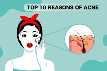 Top 10 causes of Acne
